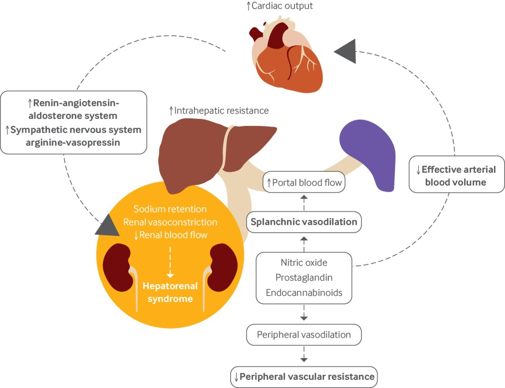 Hepatorenal syndrome: pathophysiology, diagnosis, and management | The BMJ