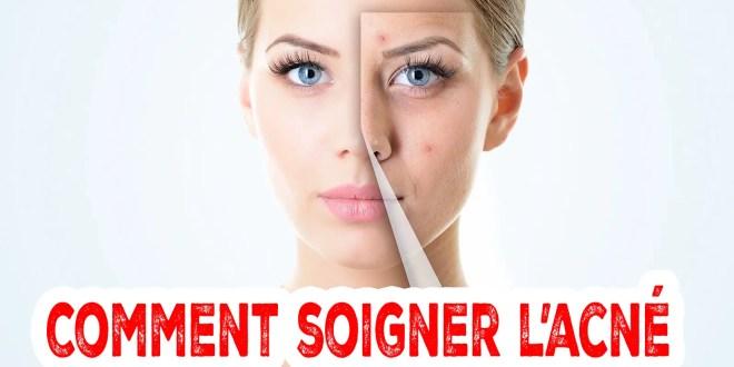 Comment soigner l'acné naturellement