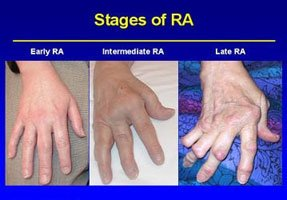 Prolonged Joint Inactivity Makes The Symptoms Of RA Worse.