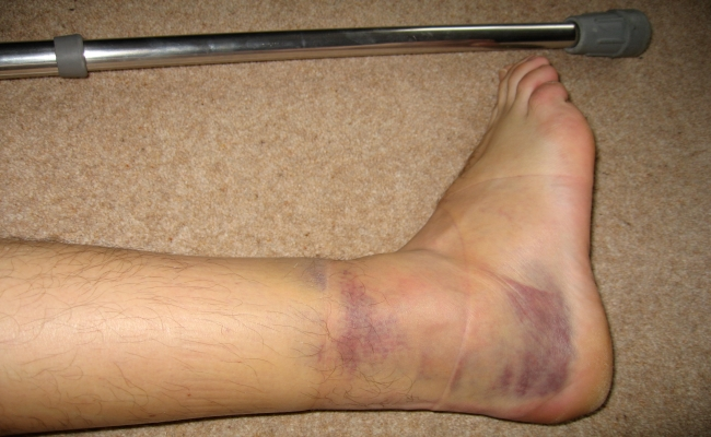 Twisted Ankle
