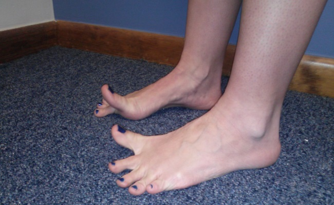 Stretches For Toes And Feet