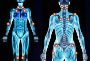 Pain areas common in fibromyalgia patients.
