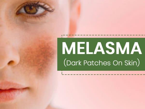 melasma 1590565006