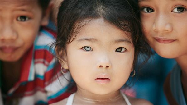 मनुष्यों में हेटेरोक्रोमिया (अलग-अलग रंग की आंखें) क्या है?