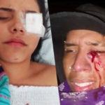 """Chile. Escalofriante estela de mutilaciones y heridas deja represión de los «pacos» en el """"Súper Lunes"""""""