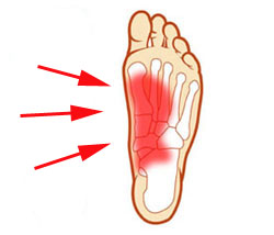 foot pain side of foot