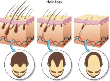 Simplest hair loss treatment and prevention ever!