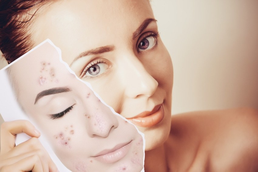 Alpha Hydroxy Acid, The Anti-Aging Miracle You Should Not Ignore