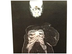 jean scan 1