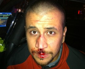 George Zimmerman broken nose