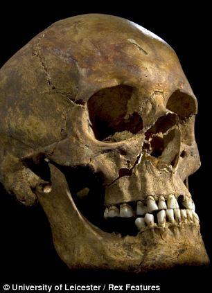 Richard III's teeth