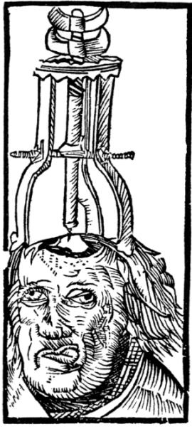 Peter_Treveris_-_engraving_of_Trepanation_for_Handywarke_of_surgeri_1525