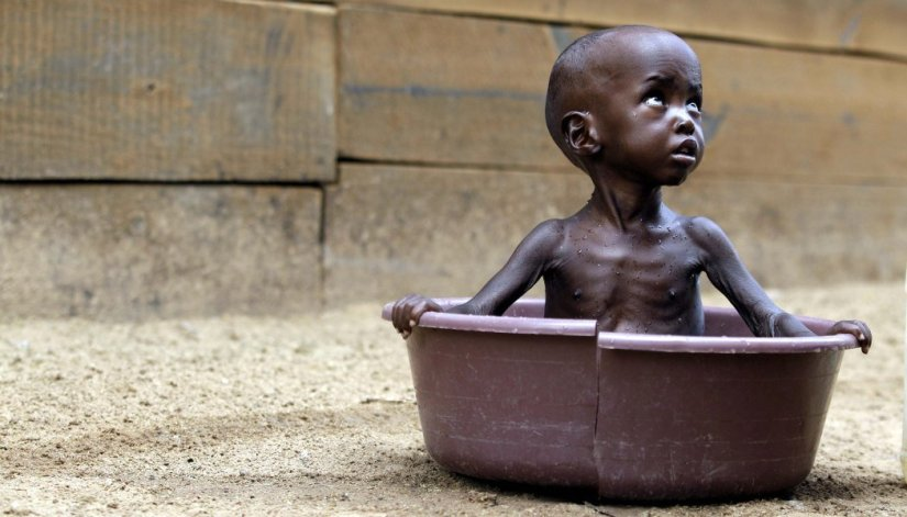 Image result for extreme poverty