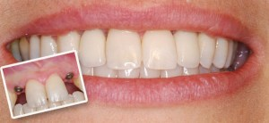 Dental Implant 25