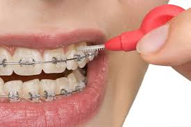 orthodontic treatment 2
