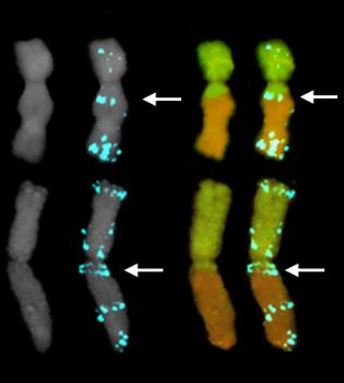 Translocation breakpoints in SSR-rich chromosomal regions