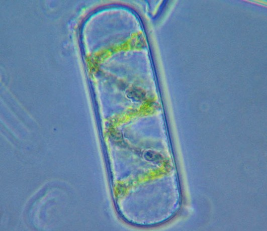 An algal cell with single helical chloroplast Image: Jasper Nance/Wikimedia Commons.