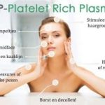Platelet Rich Plasma behandeling