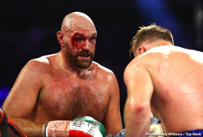 Deontay Wilder Tyson Fury Bob Arum top rank Wilder vs. Fury