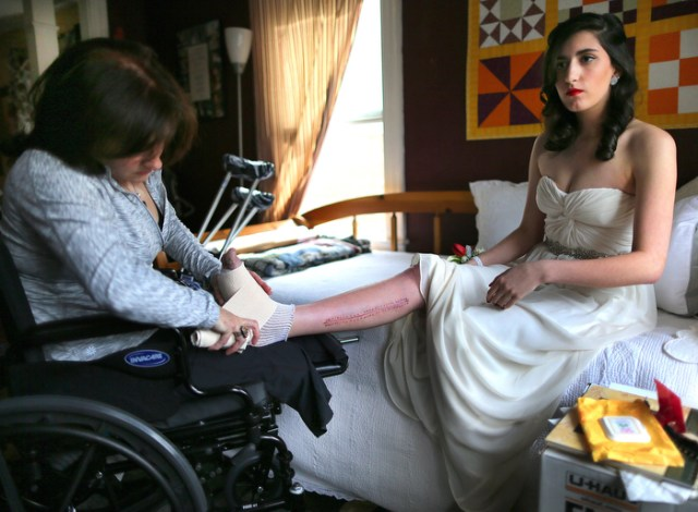 Lowell-5/28/13- Sydney Corcoran a victim of the marathon bombing gets ready for her Lowell High School senior prom as her mother Celeste wraps her foot that was injured in the bombing. A chuck of her foot was destroyed in the bombing that also ripped into her femoral artery. Celeste lost both her legs in the bombing. It was Sydney's dream to go to her prom.