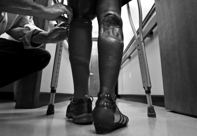Mery Daniel, a Boston Marathon bombing survivor, stands as Paul Martino, of United Prosthetics, adjusts  a cover the computerized knee and foot of her prosthetic left leg, at the company in the Dorchester neighborhood of Boston, Wednesday, June 26, 2013. Daniel's right leg also suffered significant damage in the blast, with the loss of calf muscles controlling her ankle and skin that was ripped away. The custom-made prosthetic leg features the most advanced technology of the day, but is clumsy compared to the leg that Daniel lost in the bombing.