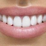 Quelles sont les dernières innovations en matière de prothèses dentaires ?
