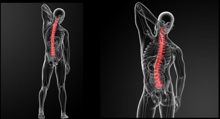 頸椎退化可致雙腿泛力