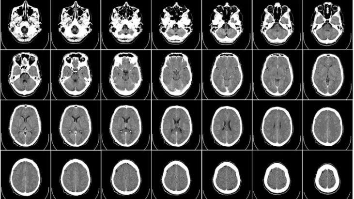 「照腦」的抉擇-電腦掃描