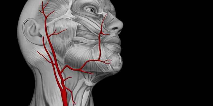 頸動脈狹窄, 中風