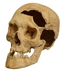 Damaged Skull After Brain Injury