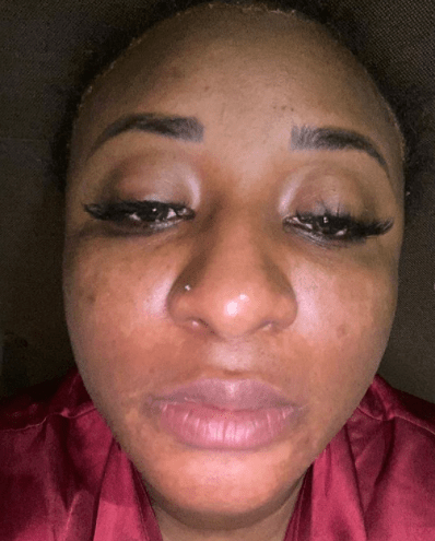Actress Ini Edo Cries Out, Reveals That She Is Depressed, Shares Photo Of Her Damaged Skin