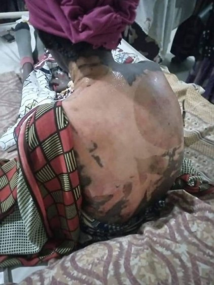 Woman Pours Hot Water On Her Co-Wife And 4-Year-Old Stepdaughter