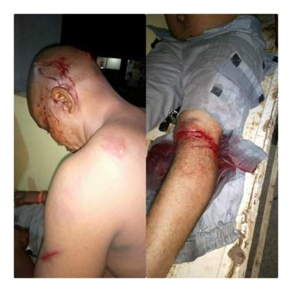 Photos Of Custom Officers Macheted By Smugglers