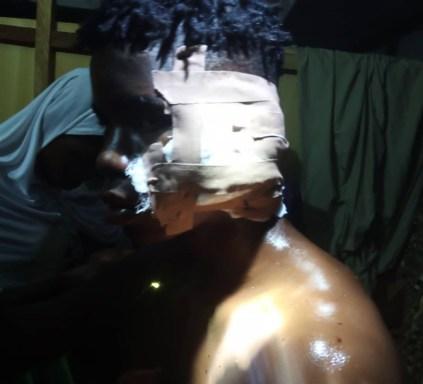 See Photos As Many Injured As Suspected Fulani Herdsmen Attack Farm Belonging To Kwara APC Spokesman