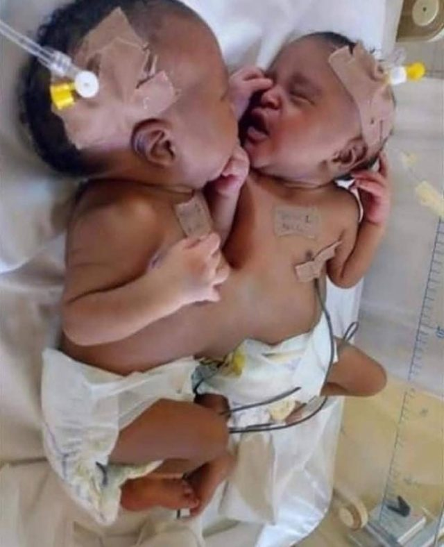 Nigerian Doctors Separate Co-joined Twins