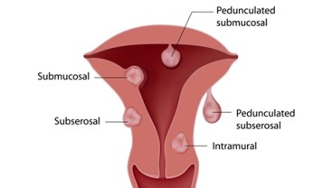 'Men Causes 60 Percent Of Women's Vaginal Infection'