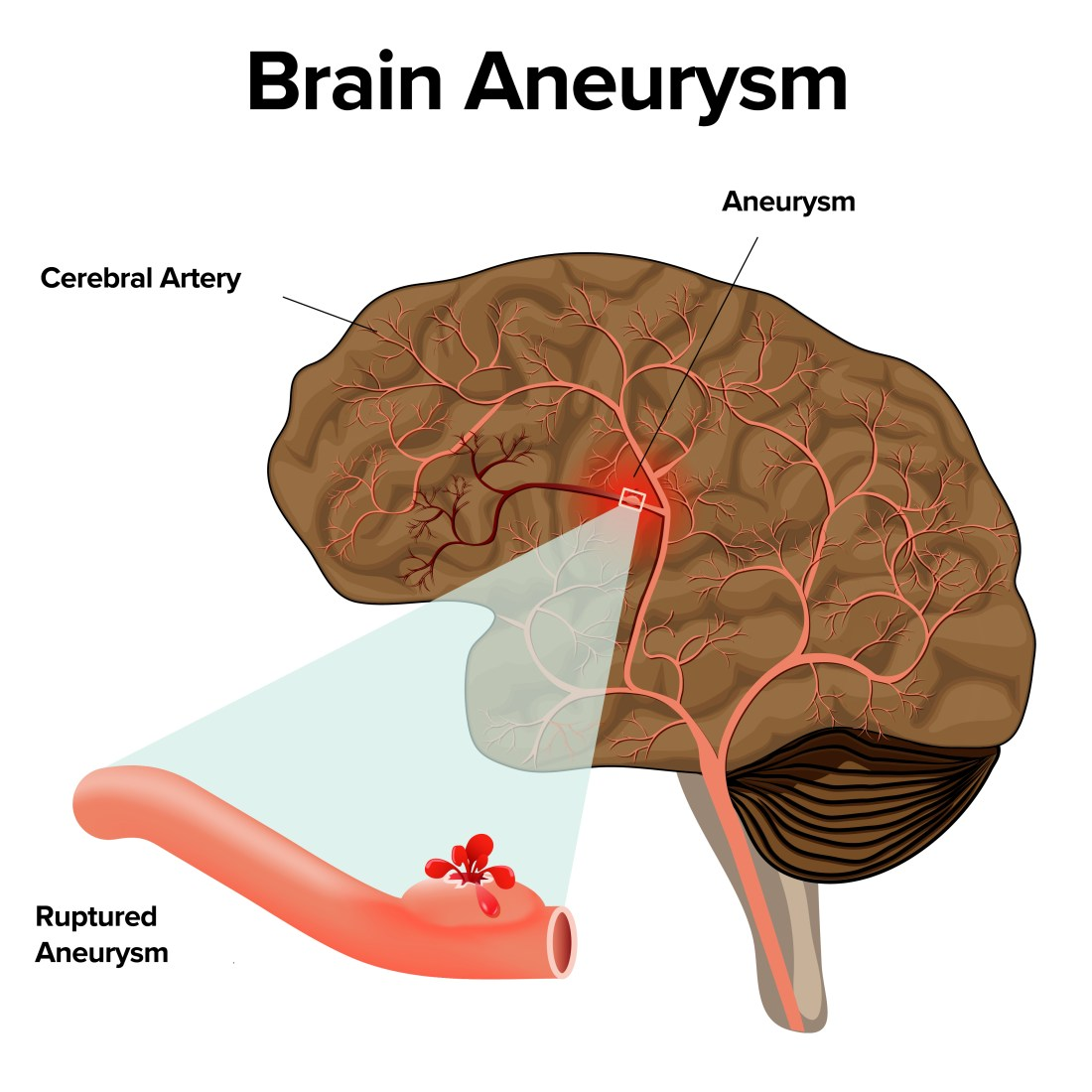Brain Aneurysm : Causes, Diagnosis, Symptoms And Treatment