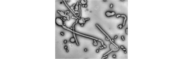 Long, string-like flu virus particles