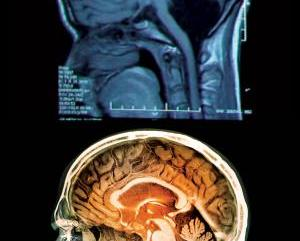 24 Year Old Woman Survives Without Cerebellum In The Brain!