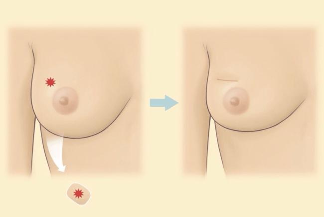 乳癌治療方法