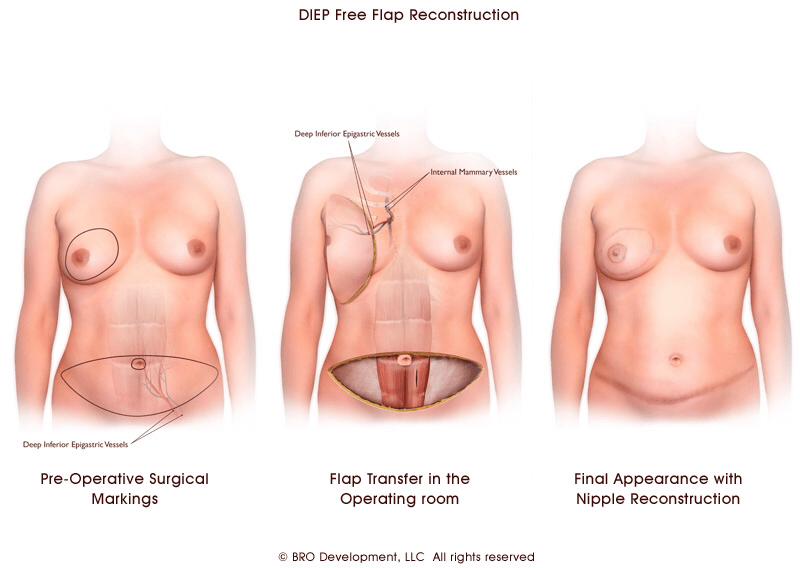 乳房重建手術