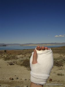 Hand bandaged up