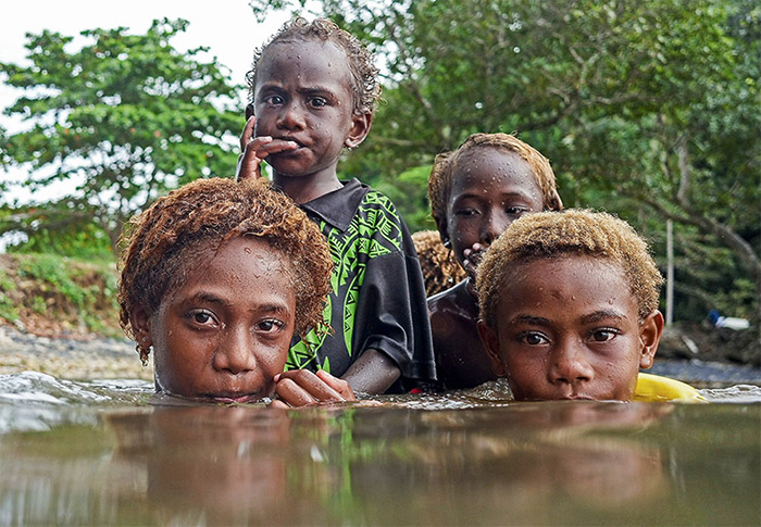 Science Magazine - Best Science Photos of 2018 - PNG children and Yaws disease - image by Brian Cassey