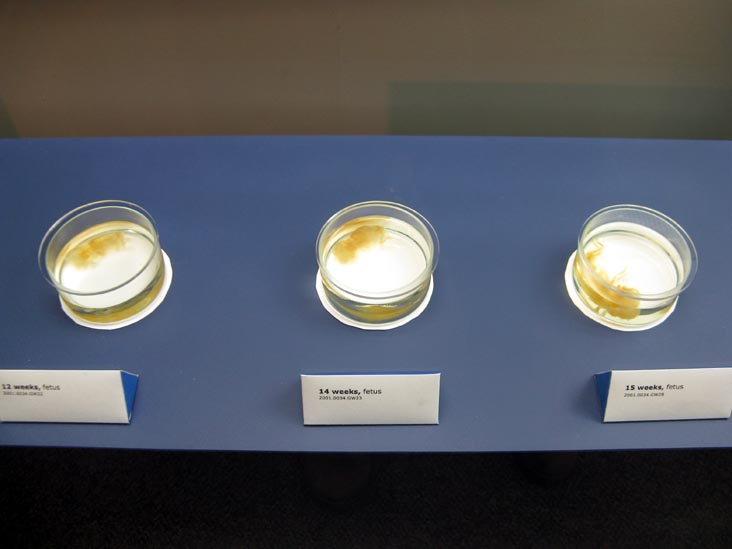 Fetus, 12, 14 and 15 Weeks, From a Single Cell Exhibit, National Museum of Health and Medicine, Walter Reed Army Medical Center, 6900 Georgia Avenue NW, Washington, D.C.