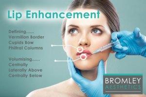 Bromley Aesthetics Lip-Fillers