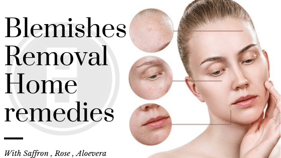 Blemishes Removal Home Remedies
