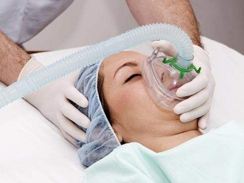 Anestesia nel parto