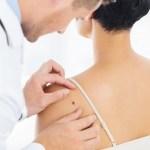 Tumori della pelle: al Civile di Brescia c'è anche la tecnica della fototerapia dinamica