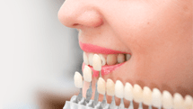 Dental Veneers in Austin, TX | Broberg and Tieken Dental
