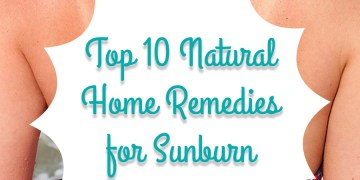 Top-10-Natural-Home-Remedies-for-Sunburn-Relief